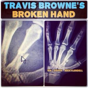 fractura Travis Browne UFC on Fox 11